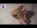 Os sacrum. Нормальная анатомия крестца